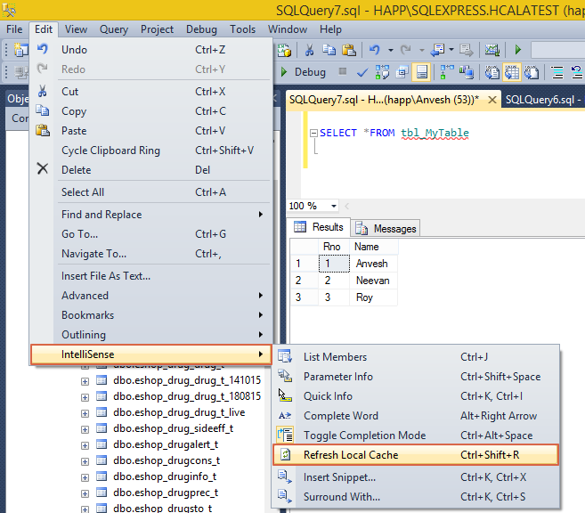 Sql server newly created table with red underline and for Underline the table